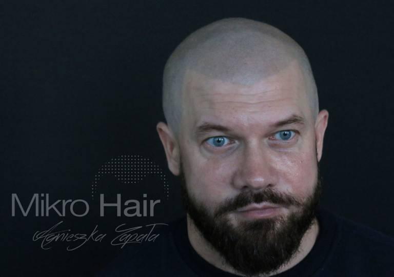 mikropigmentacja, zageszczanie włosów, gęste włosy, jak zagęscić włosy, zagęszczanie włosów i brody, zagęszczanie brody